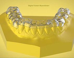 3D printable model Digital OrthoTanner Repositioner