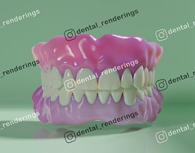 3D teeth Complete dentures - prostheses