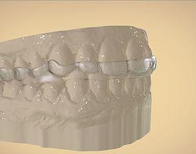 3D print model Digital Dental Bite Splint