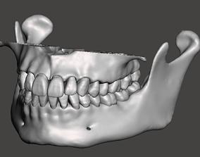 Maxillary and Mandibular dental models natural anatomical