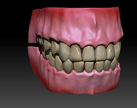 3D Gums and teeth