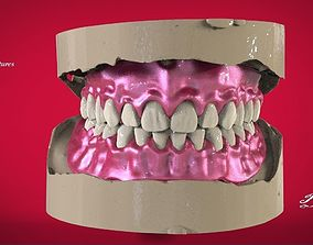 3D print model Digital Full Dentures with Manufacturing