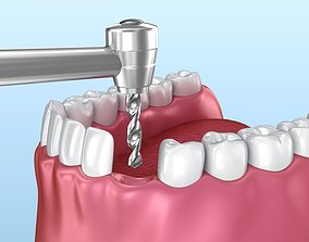 3D model denture Dental implant animated instalation