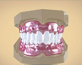 dental 3D print model Digital Full Dentures