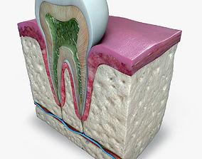 3D Teeth diagram