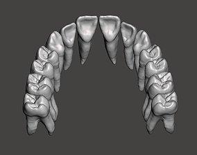 Maxillary human teeth full arch 3D print model