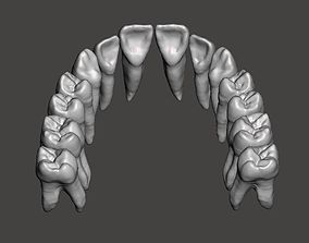 Maxillary human teeth full arch 3D print model