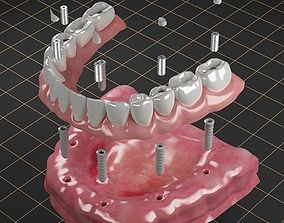 3D model Dental Implant 02