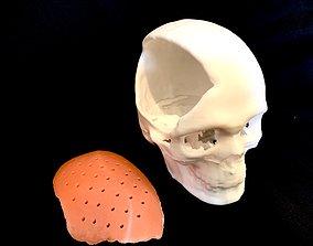 3D printable model Craniofacial Implant