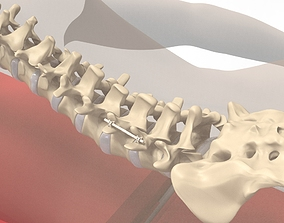 3D Human Spine and Implant