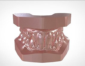 Digital Study Orthodontics Archman Models