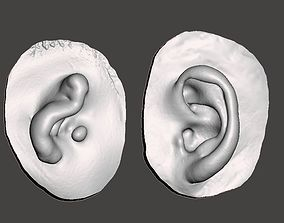Natural ear anatomy with microtia 3D print model
