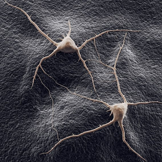 Two neurons on a background