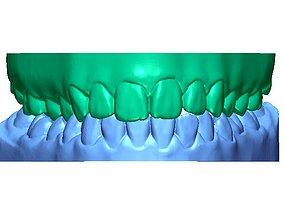 Human Teeth with Base - 3D printable model