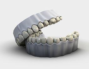 3D Denture