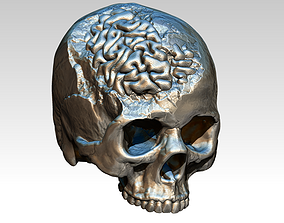Human Brain Skull Damage Salvage 3D printable model 2