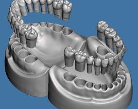 Dental models Natural teeth typodont maxillary and