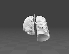 3D model Exudative Pleurisy - female real