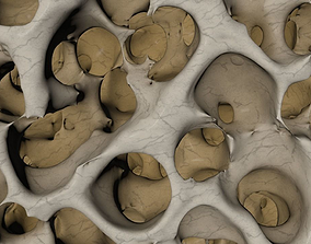 3D model normal bone structure and osteoporosis bone 1