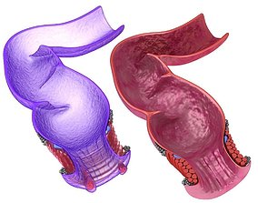 Human anatomy rectum and hemorrhoids 3D