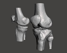 Knee joint - male - age 64 3D model