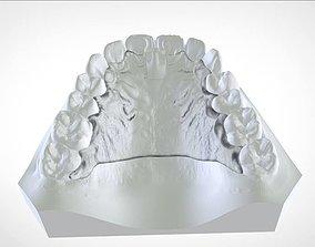3D printable model Digital Cranham Deprogrammer