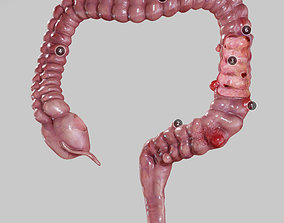 Diverticulosis and Diverticulitis 3D asset