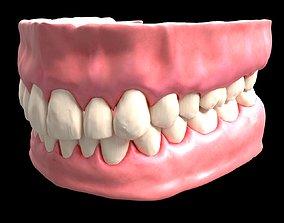 denture 3D