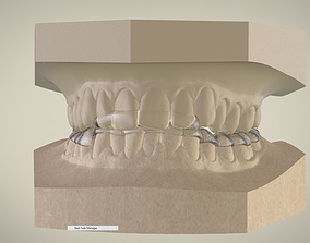 Digital Superior Repositioner 3D printable model