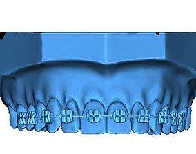 Human Teeth with Braces 3D printable model