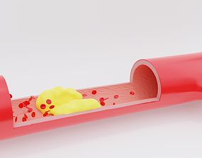 Detail of a clogged artery - animated 3D