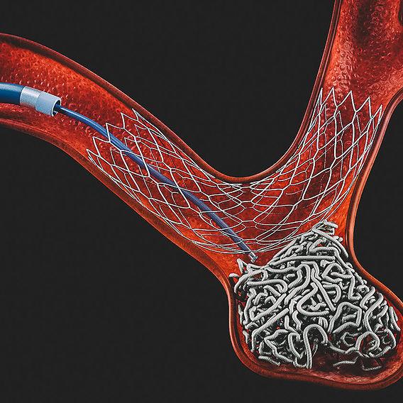 Аrterial aneurysm treatment