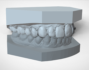 Digital Ortho Mini Deprogrammer Splint 3D printable model