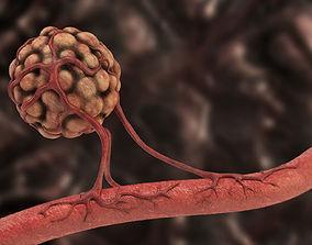 Angiogenesis 3D model
