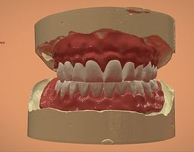 Digital Full Dentures for 3D Printing and