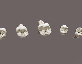 Maxillary Class 1 Caries 3D model