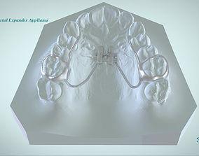 3D printable model Digital Rapid Palatal Expander