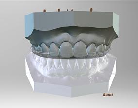 3D print model Digital Bite-guard Appliance