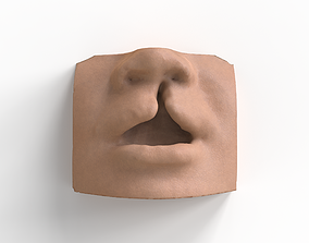 3D print model cleft lip and palate for surgical