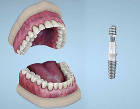 Dental implants 3D