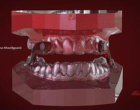 Digital Sleep Apnea Mouthguard 3D print model