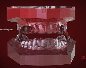 3D printable model Digital Sleep Apnea Mouthguard