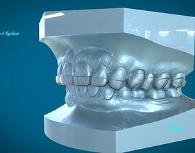 Digital Dental Dayguard Splint 3D print model