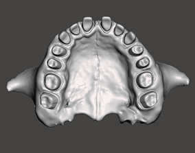 Human maxillary jaw with typodont 3D print model