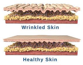 3D Skin Cross Section