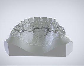 Digital Nance Holder Appliance 3D printable model