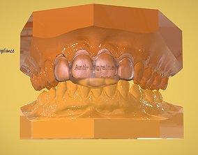 Digital Anti-Migraine 3D printable model