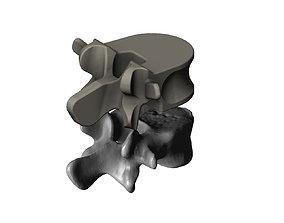 Reimagining of spinal vertebrae 3D printable model