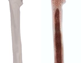Femur bone closed and sliced 3D