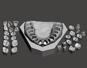 Dental Sample model dental